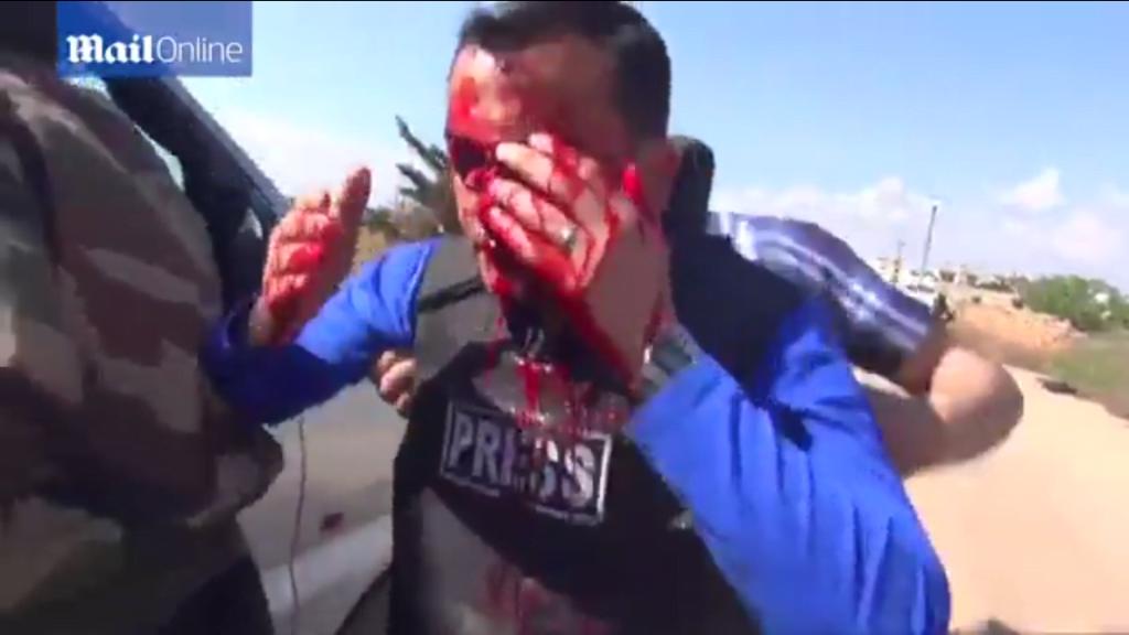 Jurnalist ranit in direct, in Siria